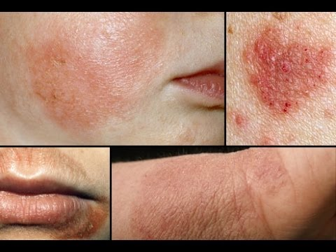Causes of Eczema, Symptoms and How To Get Rid Of Eczema