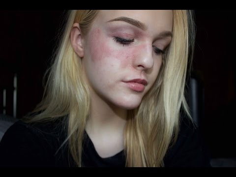 My Eczema Story: Venting session ?