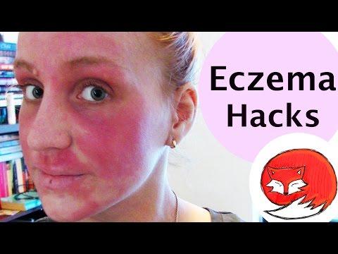 Eczema Hacks | Advice For Shitty Skin