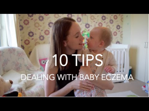 10 TIPS FOR BABY ECZEMA | Mummy Monday
