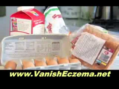 Which Foods Cause Eczema – What to Avoid Eating If You Suffer With Eczema