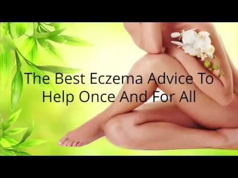 How to Treat Eczema on Face
