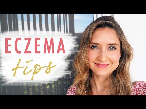 HOW TO HEAL ECZEMA | Top 5 Natural Tips!