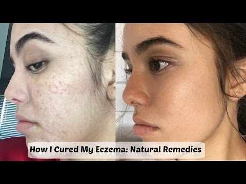 How I Cured My Eczema | Natural Remedies to Clear Skin | Guemz