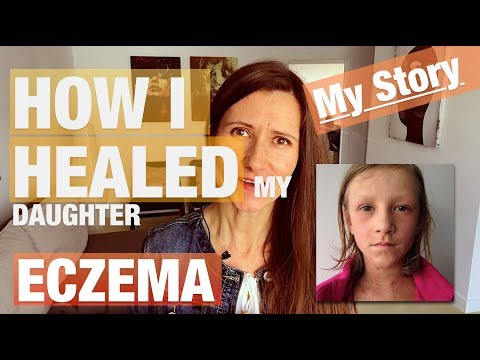 How I Healed My Daughter Eczema