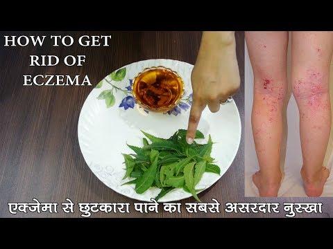 ECZEMA – एक्जिमा को जड़ से खत्म करने का सबसे असरदार नुस्खा व इलाज || How To Get Rid Of Eczema ||
