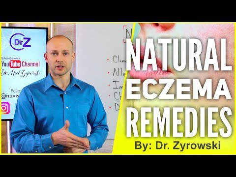 Natural Eczema Remedies   Actually Works!