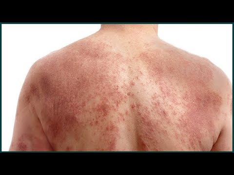 Eczema (With Pictures) : Top 10 Natural Home Remedies To Get Rid of Eczema