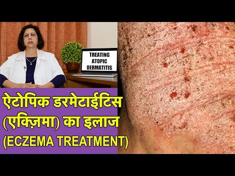 एक्ज़िमा / एलर्जी दाद खाज खुजली का ईलाज || Eczema Treatment