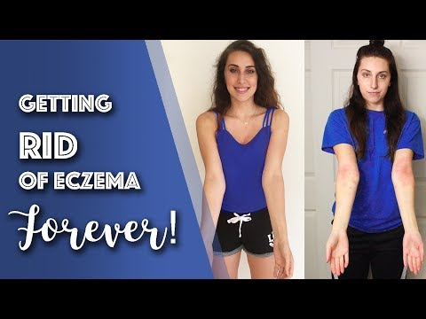 How I CURED my Eczema in 6 Months! 5 Diet Tips // Michelle Mills