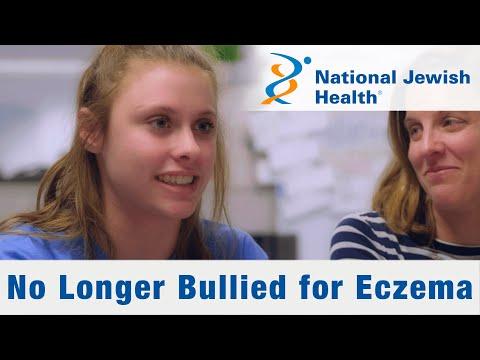 No Longer Bullied for Eczema