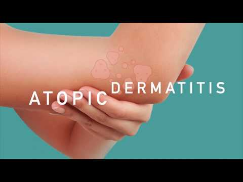 Atopic Dermatitis (ECZEMA) with Dr. Gregory Rosner