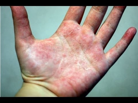 DermTV – How to Treat Eczema [DermTV.com Epi #178]