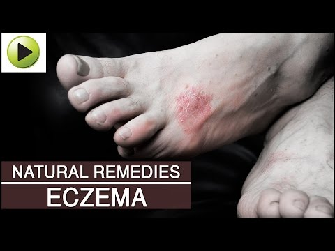 Skin Care – Eczema – Natural Ayurvedic Home Remedies