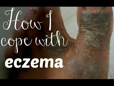 Eczema (GRAPHIC) outbreak cleared in 7 days | Treatment options