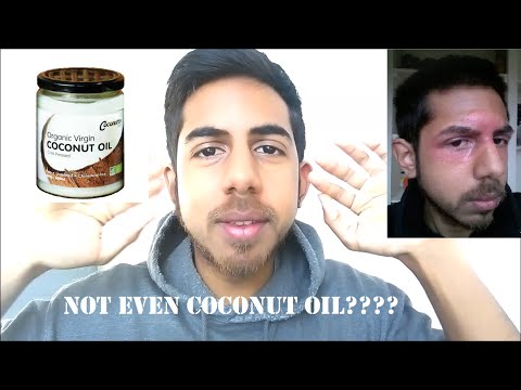 Why I don't recommend Coconut Oil for Eczema
