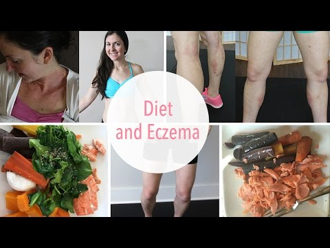 Eczema diet. What foods to eat and not eat. What I personally ate!