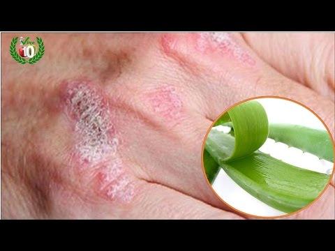 ?? La Planta Milagrosa Que Trata El Eczema,  Psoriasis, Dermatitis Y Otras Alergias En Tu Piel…