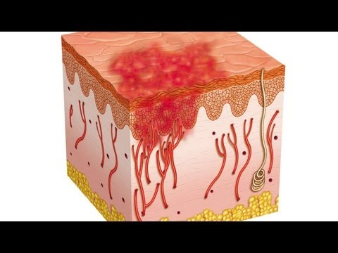 Eczema – What is it?