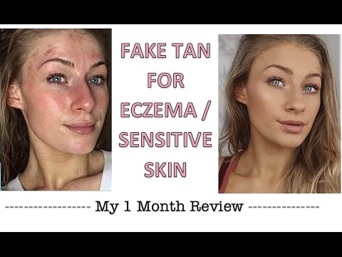FAKE TAN FOR ECZEMA/SENSITIVE SKIN REVIEW | Eczema/psoriasis/sensitive skin..