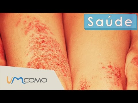 Tratamentos naturais para o eczema
