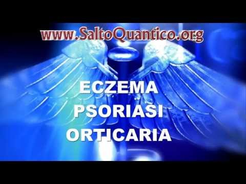 ECZEMA, PSORIASI e ORTICARIA: significato emozionale e cura – Salto Quantico Daniele Penna