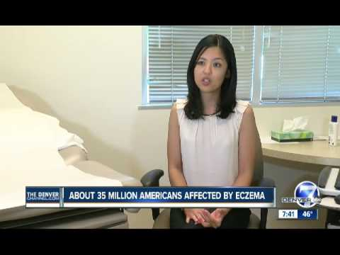About 35 Million Americans Affected By Eczema