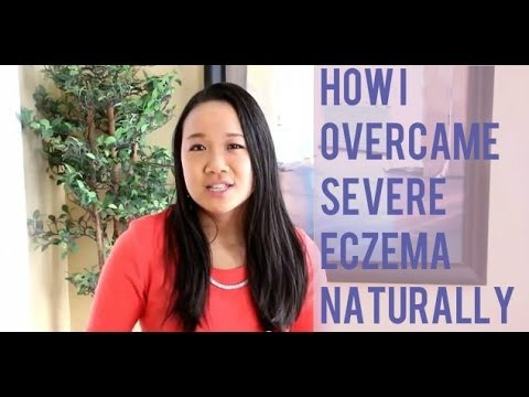 How I Overcame Severe Eczema Naturally
