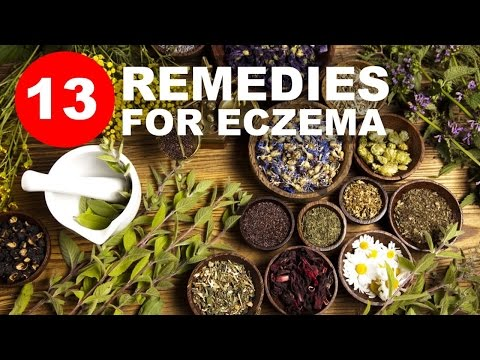 Top 13 Home Remedies for Eczema