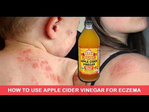 How To Use Apple Cider Vinegar To Treat Eczema It's Unbelievably Effective Life well lived