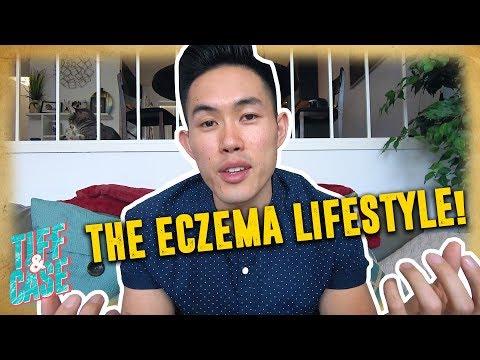 How I Live With ECZEMA