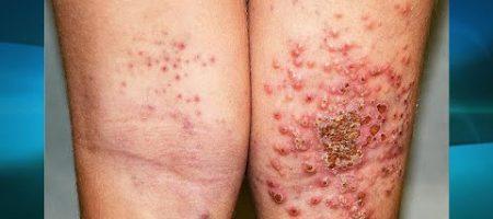 Eczema videos salmon fish oil page 2 for Fish oil for eczema