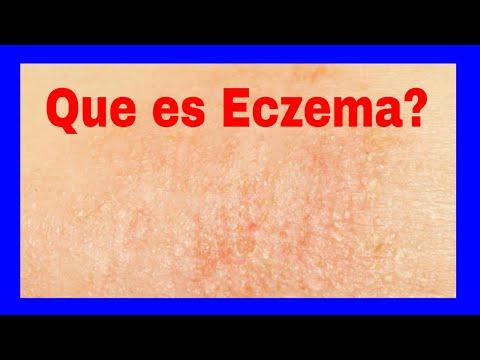 Que es Eczema | Eczema Definicion