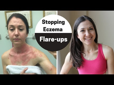 How to handle eczema flare-up (My 4 step checklist to clear skin)