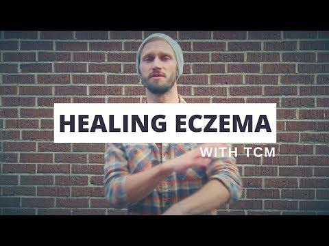 Healing Eczema with TCM