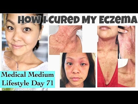 Day 71…HOW I CURED MY ECZEMA…NATURALLY