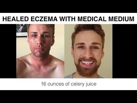 Healed From Eczema With Medical Medium