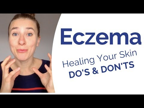 Eczema – What Really Causes It & Most Powerful Do's & Don't to Start Healing Your Skin Now