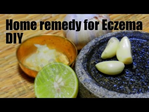 Simple Home Remedy For Eczema – Step By Step Remedy | Bowl Of Herbs