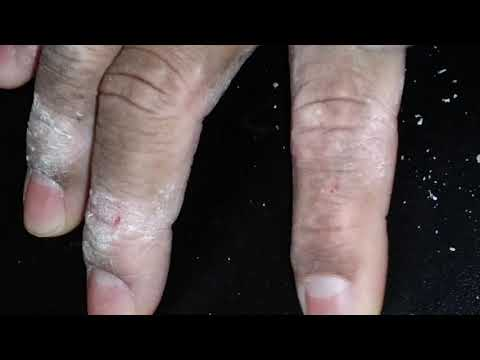 #ASMR #Eczema #ItchyHands #Scratching