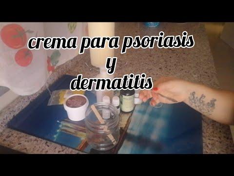 Crema para psoriasis, dermatitis, eczema