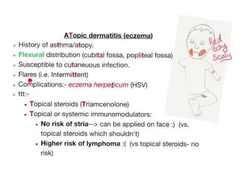 Atopic Dermatitis/ Eczema (the T mnemonic)