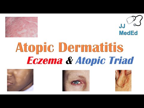 Eczema (Atopic Dermatitis) | Atopic Triad, Triggers, Who gets it, Why does it happen, & Treatment