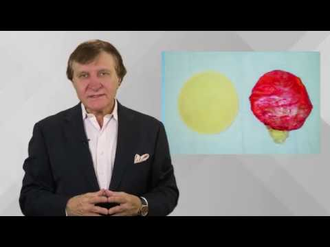 Fish Oil for Breast Implant Complications? Plastic Surgery Hot Topics with Rod J. Rohrich, MD