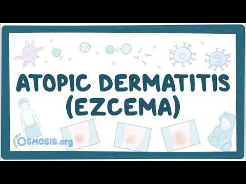 Atopic dermatitis (eczema) – causes, symptoms, diagnosis, treatment, pathology