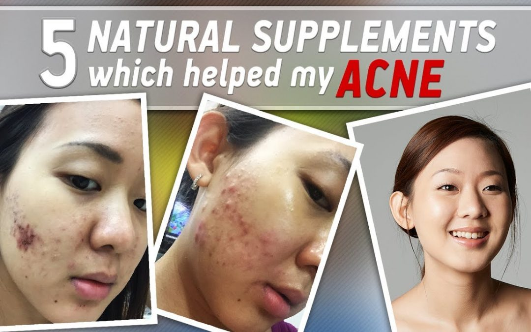 How I Fight ACNE with Natural Supplements (before & after) | Joanna Soh