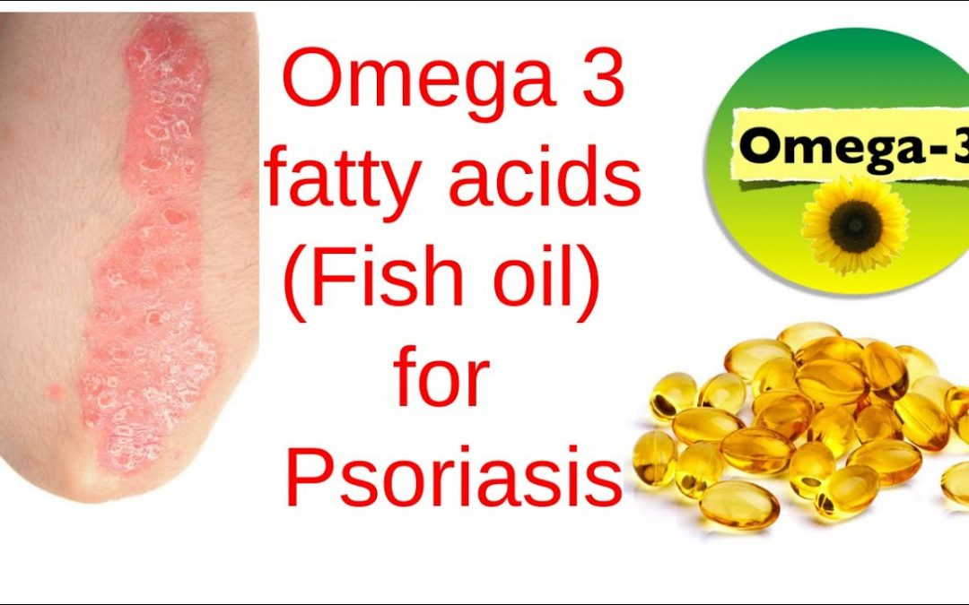 Omega 3 fats (Fish Oil) for Psoriasis