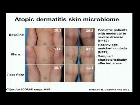 Eczema, Immunity and the Skin Microbiome – Heidi Kong