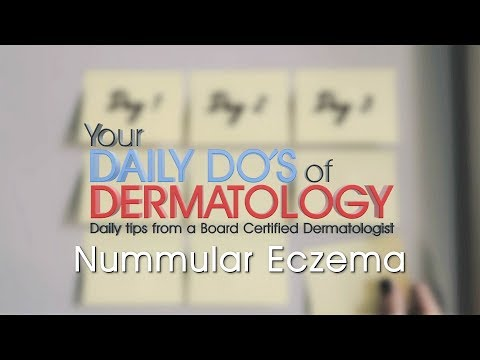 Nummular Eczema – Daily Do's of Dermatology