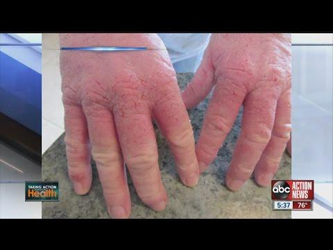 New drug helps severe eczema